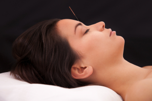 Acupuncture needle in the head