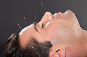 Man Undergoing Acupuncture Treatment
